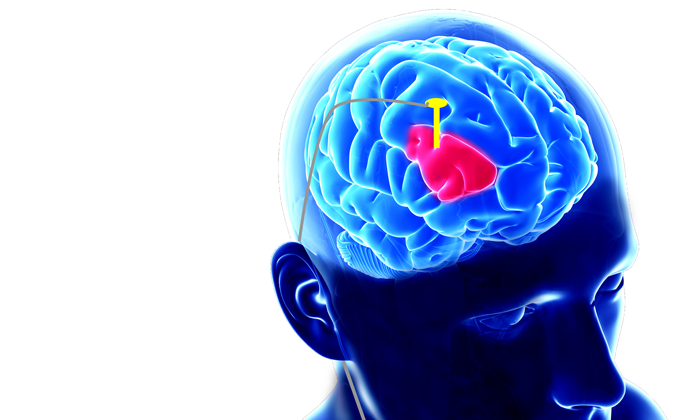 Where Brain Shakes May Be Key To >> Parkinson S Foundation Better Lives Together